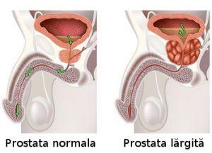 6 Remedii Naturale pentru Prostata Largita (HBP)