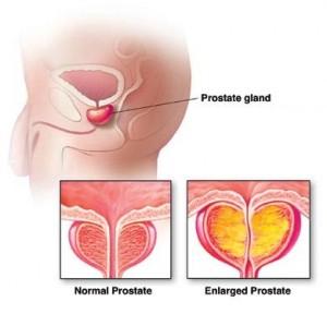 Afectiuni de prostata