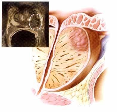 Cancerul Prostatei